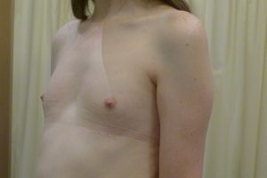 Breast Augmentation Patient_4