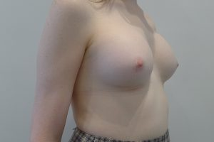 Breast Augmentation Patient 4